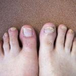 how to prevent toenail fungus